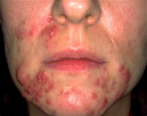 Rosacea antibiotici