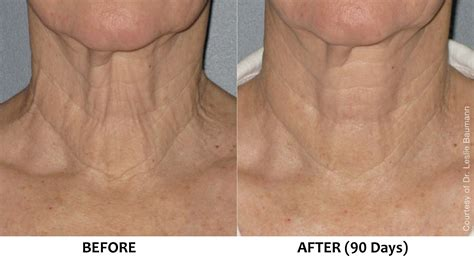 ultherapy  surgical neck lift loose sagging skin neck