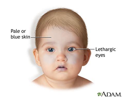 shaken baby symptoms medlineplus medical encyclopedia image