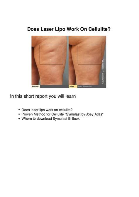why do i cellulite when i m slim news