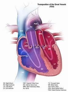 Congenital Heart Disease - Pediatrics  3