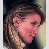 megan-fox-acne-scars