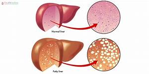 14 Natural Home Remedies For Liver Disease With 6 Potent