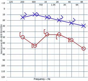 Audiometric Findings  Standard Audiometry Reveals A Graph