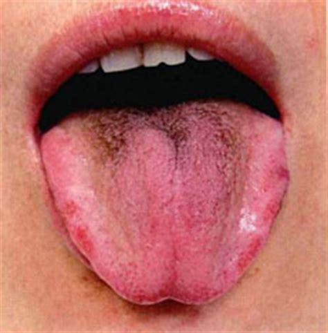tongue diagnosis  traditional chinese medicine