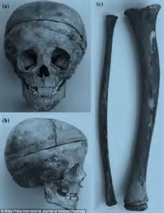 Rickets Bone Disease
