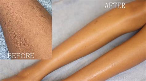 shave body hair bikini  fast  razor bumps