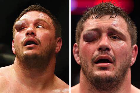 Ufc Broken Orbital Floor ufc fighter s eye grossly disfigured after bout
