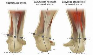 Гимнастика по бубновскому от остеохондроза