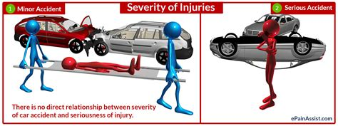 Relationship Between Severity Of Injury And Severity Of