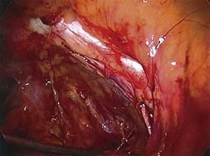 Pelvic Anatomy From The Laparoscopic View