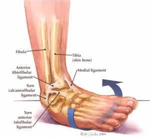 Inversion Ankle Sprains | Gymnastics Injuries  Calcaneofibular