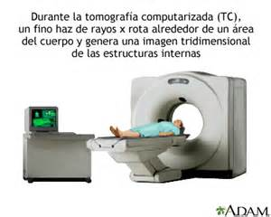 cat scan definition tomograf 237 a computarizada coraz 243 n medlineplus