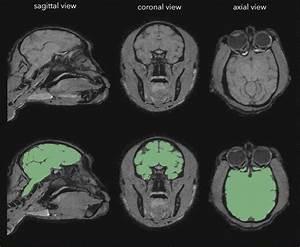 We Performed Manual Segmentation Of The Brain  Green