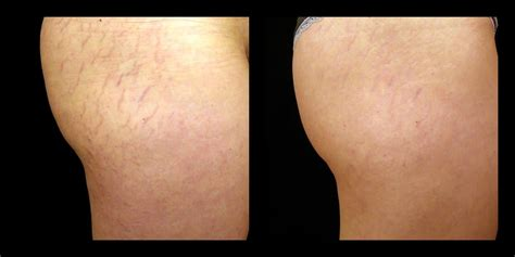 Skin Tightening and Contouring Laser | Silk Touch Med Spa