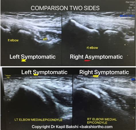 MSK (Musculoskeletal) Ultrasound Normal Anatomy and ...
