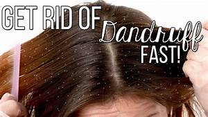 How To Get Rid Of Dandruff Fast   Only 2 Ingredients