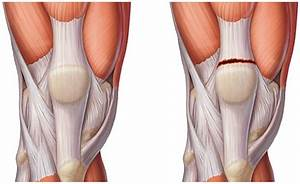 От боли в коленном суставе мазь