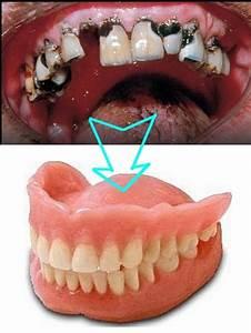 Dents Qui Se Déchaussent Photos : notre ado ne se lave plus les dents probl mes dentaires forum sant ~ Medecine-chirurgie-esthetiques.com Avis de Voitures