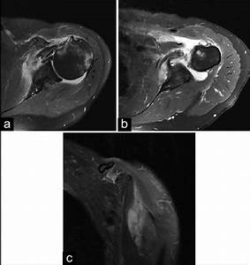 A   Axial Magnetic Resonance Imaging  Mri   Demonstrates