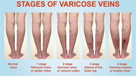 stages  varicose veins youtube