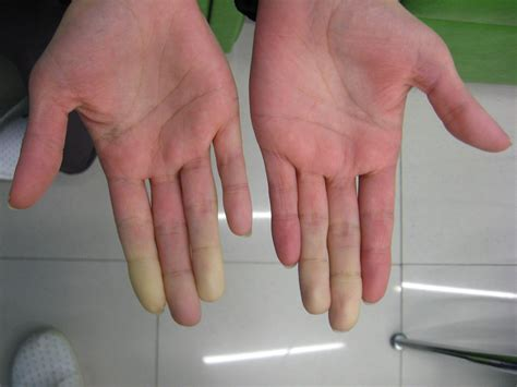The Truth About My Dead Hands Raynauds Felly Bee