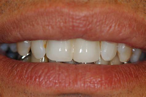 cabinet d implantologie dentaire ile de la reunion berthomme plusieurs 233 l 233 ments