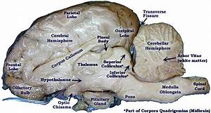 Sheep Brain Dissection Bi