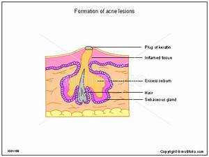 Formation Of Acne Lesions Illustrations