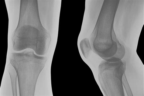 knee ray bone right meniscus xray bones pain problems options side views front torn imaging screening consider these health shown
