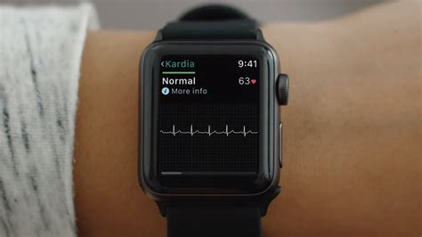 FDA clears first medical accessory for the Apple Watch—an