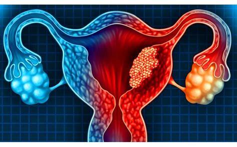 salud cuales son los factores de riesgo del cancer de