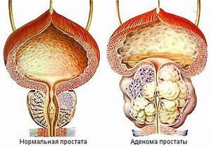 Лечение простатита у мужчин лекарства простамол цена