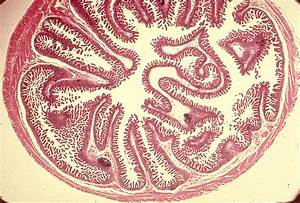 Small Intestine Color Images