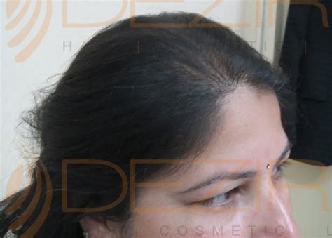 Female Pattern Hair Loss Done At Dezire Clinic Pune
