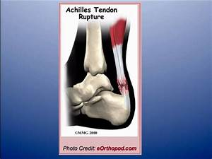 David Beckham Achilles Tendon Rupture   Repair  Foot