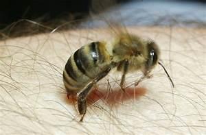 Gift Für Wespen : bienen wespen und hornissen wie gef hrlich sind insektenstiche web wissen stuttgarter ~ Whattoseeinmadrid.com Haus und Dekorationen