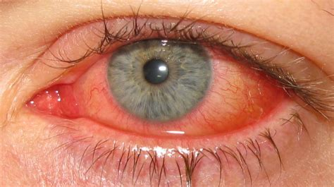 Adenoviral keratoconjunctivitis Wikipedia