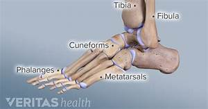 What Is Ankle Osteoarthritis