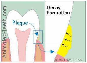How long does it take a cavity to form? | Why?