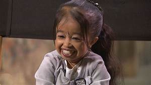 Jyoti Amge: Meet The Smallest Living Woman In The World