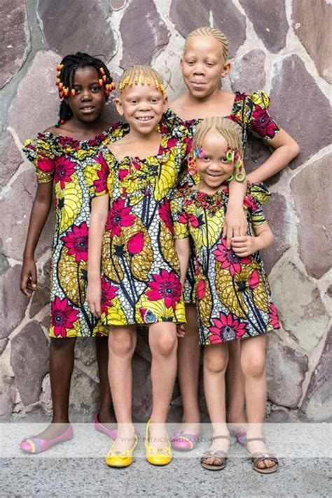 Approximately One Person In 17000 Is Born With Albinism