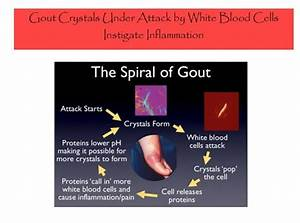 Everything You Ever Wanted To Know About Gout  Causes