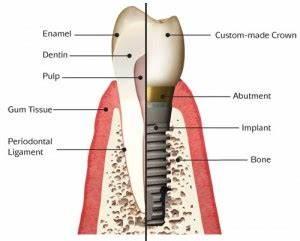 Dental Bridges Vs Implants  Comparison Of Costs  U0026 Benefits