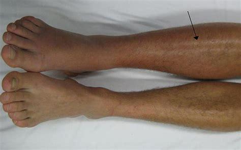 verstopte aders benen