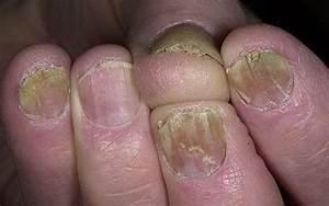 Трещина на ногте большого пальца ноги грибок