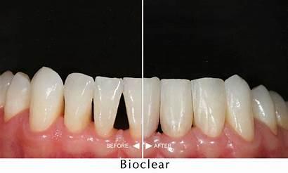 Bioclear Teeth Gap Filling Dental Restore Smiles