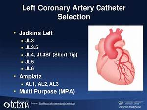 Interventional Cardiology  Guiding Catheters  Wires  And