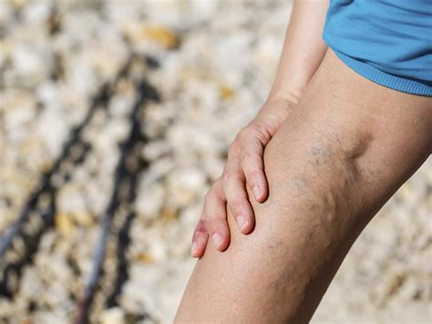 Varicose Veins Leg And Foot Health Andrew Weil Md