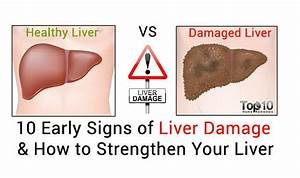 10 Early Signs Of Liver Damage  U0026 How To Strengthen Your